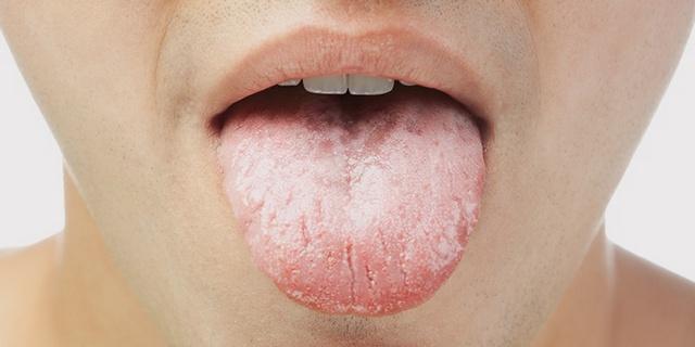 Ученые поведали, как поязыку определить болезни